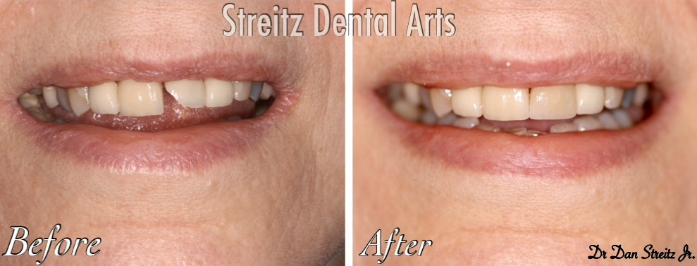 Before after single anterior