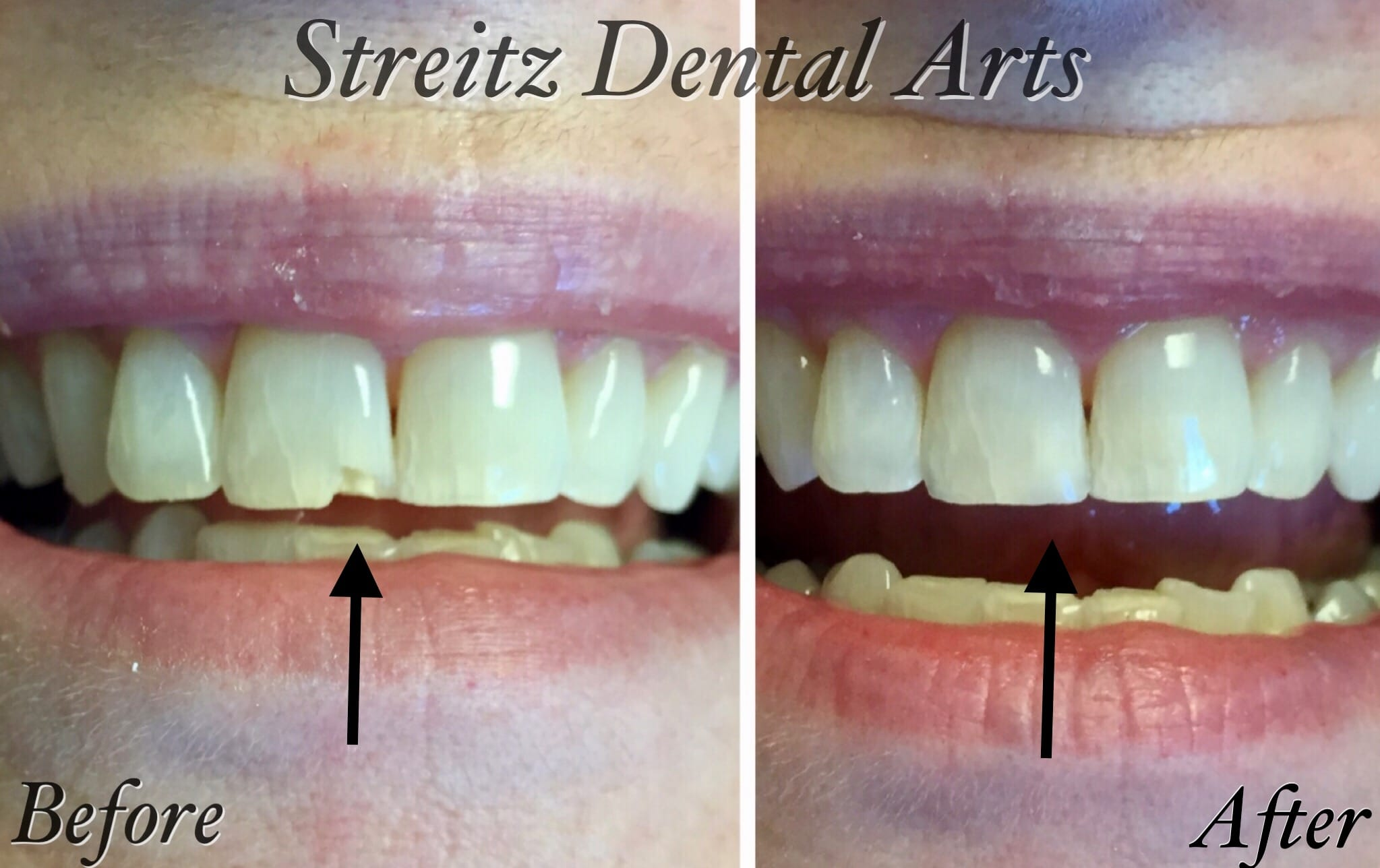 Before and After Photos of Dental Implants and Cosmetic