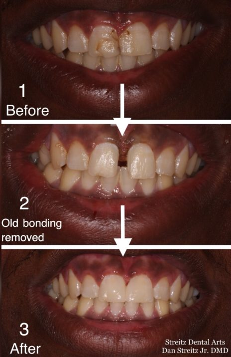 3 step bonding before after