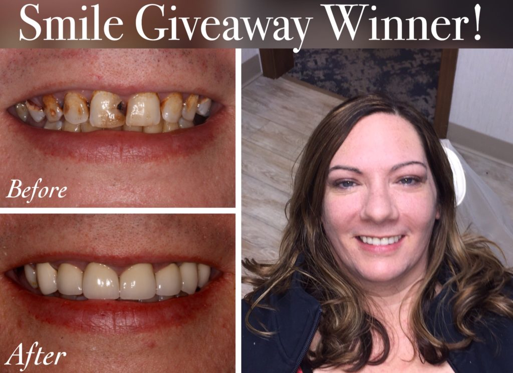 Smile Makeover Giveaway | Streitz Dental Arts
